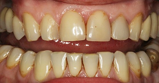 зубы фото желтые